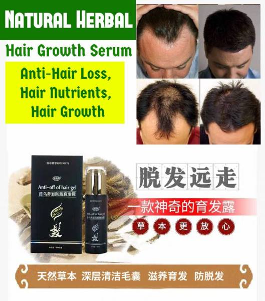 Buy Hair Growth Serum 👩 Hair Loss Tonic 👩 Hair Loss Treatment 👩 promote hair growth Singapore