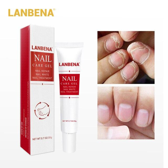 Lanbena Nail Care Gel Fungal Nail Treatment Remove Onychomycosis Nail Care Nourishing Effective Against Hand And Foot Nail Care.