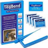Best Deal Micro Tagband Skin Tag Remover Device For Small To Medium Skin Tags Intl