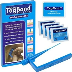 Coupon Micro Tagband Skin Tag Remover Device For Small To Medium Skin Tags Intl