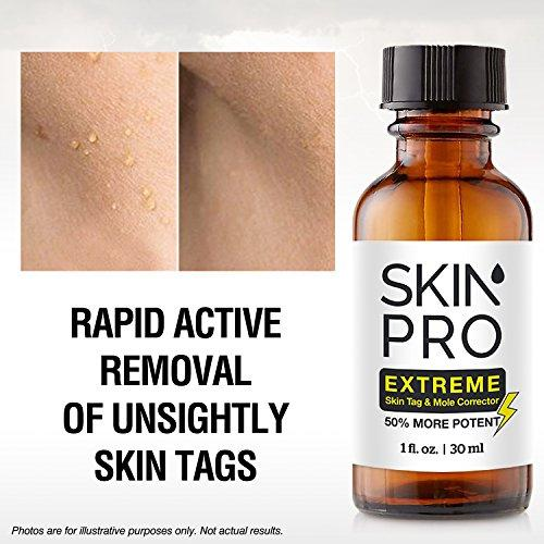 Buy SkinPro EXTREME Skin Tag Remover & Mole Corrector Fast Acting Physician Level 3 Formula Industry Leading 25% Pure Salicylic Acid Concentration Singapore