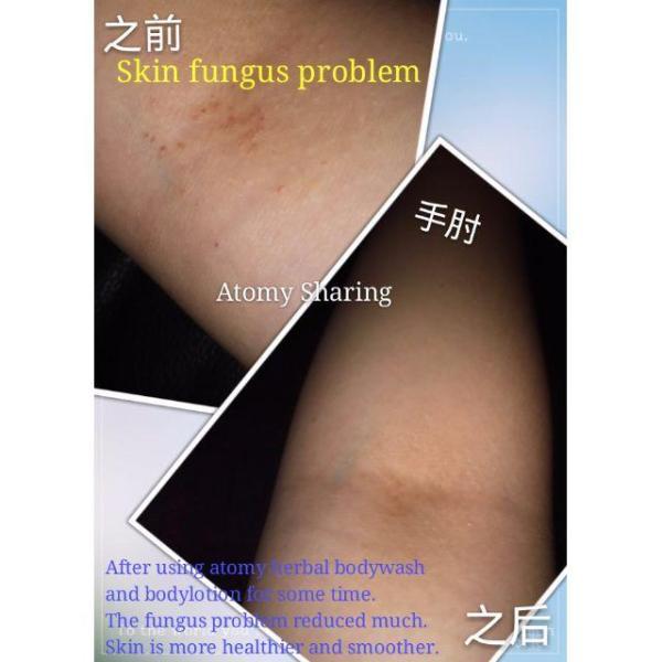 Buy atomy organic body lotion from korea(ITCH SAY BYE BYE) Singapore