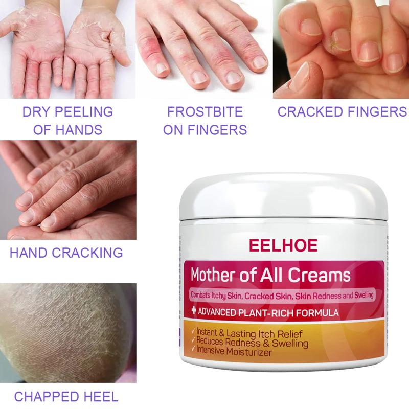 Kem C & M EELHOE Eczema, Da Bệnh Vẩy Nến Kem, Thuốc Mỡ Eczema Viêm Da Điều Trị Bệnh Vẩy Nến Kem Chăm Sóc Da Kem giá rẻ