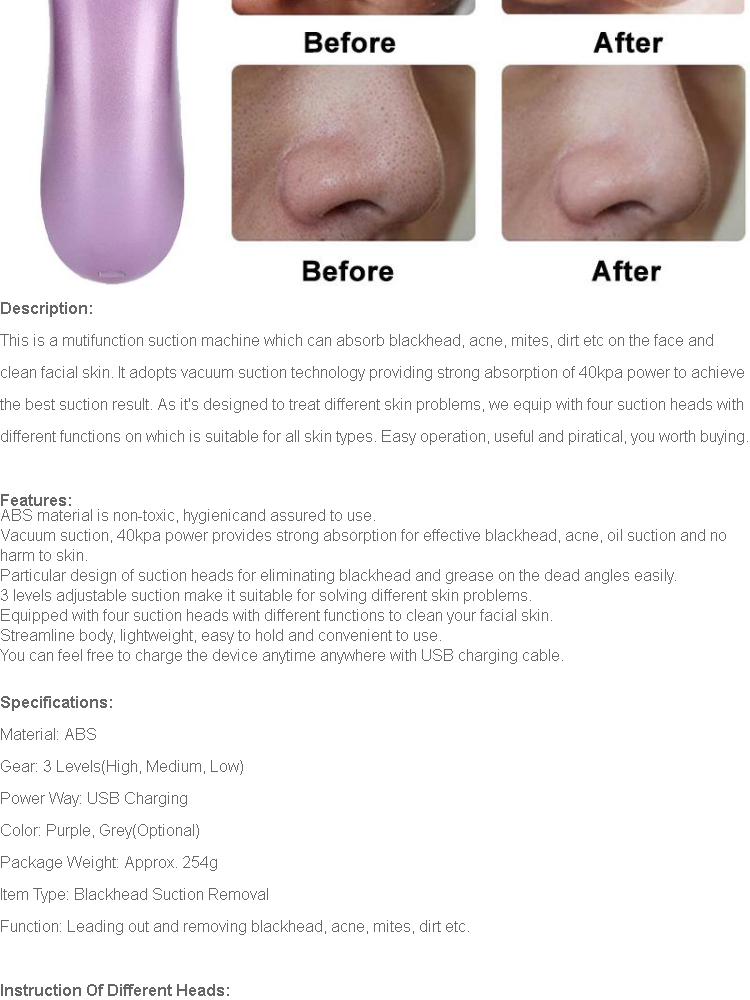 【Free Gift】4 Replaceable Heads Blackhead Vacuum Removal Pore Acne Suction  Cleanser Facial Care Purple - intl